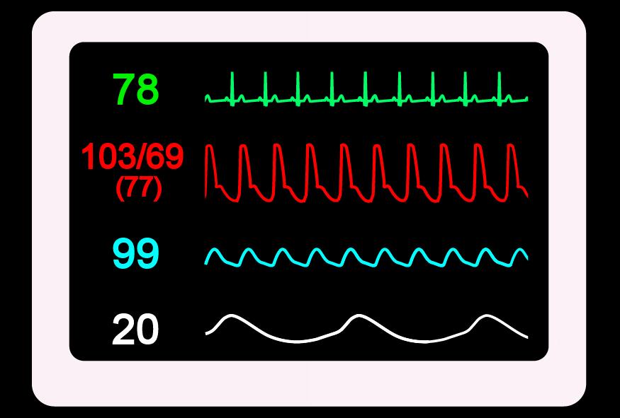 ヘルスケアIoTサービス「コネテク」が介護利用の高い非接触体温計「TM-101B」に対応