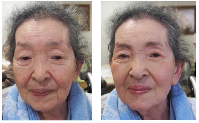 見た目の若返りは喜びに直結―AI顔診断で判明