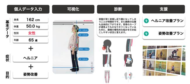 姿勢・歩行AI分析アプリが高齢者も処方可能に
